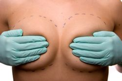 breast-augmentation-photo.jpg