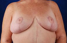 Front After Breast Lift