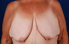 Front Before Breast Lift