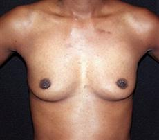400cc after before breast enlargement photo
