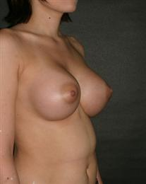 Dr otto placik breast reduction
