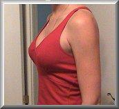 5 Months After Breast Augmentation