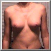 11 Weeks After Breast Augmentation