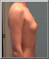 Before Breast Augmentation Side View